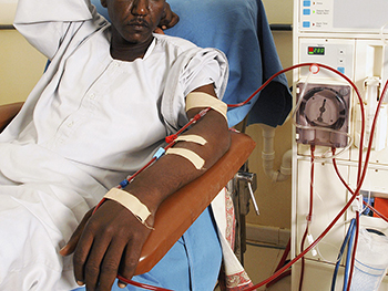 Image result for dialysis in africa
